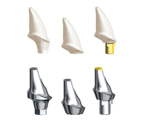 http://3d.3dbiocadedu.com/wp-content/uploads/sites/10/2017/06/nobel-procera-abutments.jpg
