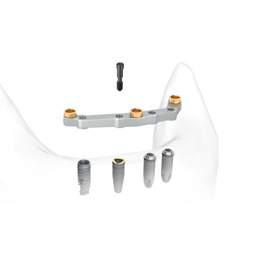 http://3d.3dbiocadedu.com/wp-content/uploads/sites/10/2017/06/nobelprocera-implant-bar-overdenture.jpg